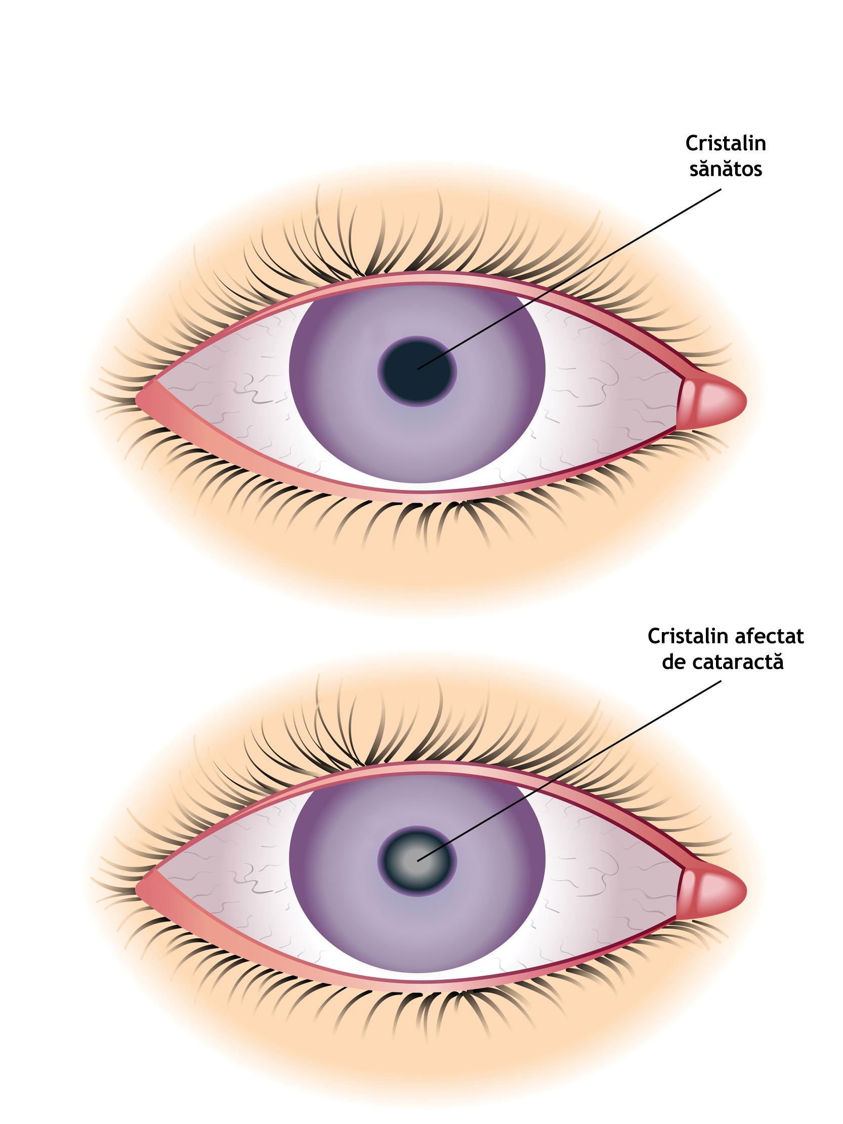 viziune în neurologie chirurgie restaurarea vederii cu laser