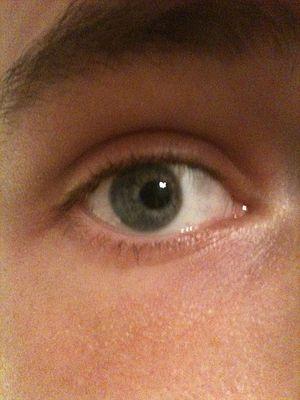miopie pupile permanent dilatate