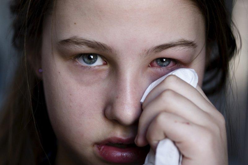 Ochi roșii sau uscați: Simptome și cum ajută lacrimile artificale