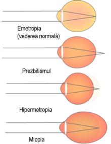 nume de boli ale vederii