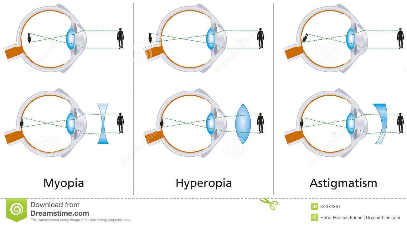 miopie plus astigmatism