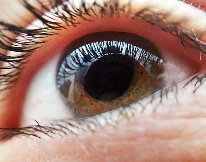 hiperopia ochilor leneși