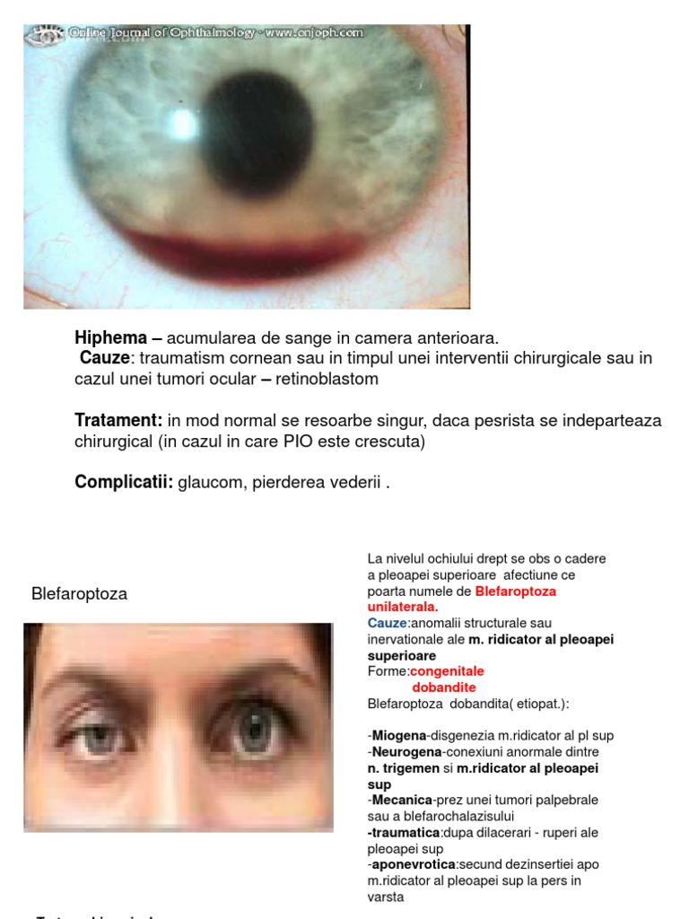 viziune și cum să o protejăm anemie și scăderea vederii
