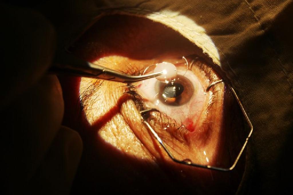 retete in oftalmologie ce mijloace există pentru a îmbunătăți vederea