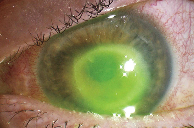 tratament de vedere cu auto-hipnoză durerea oculară a scăzut vederea