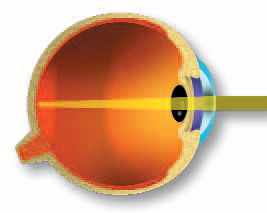 Totul despre astigmatism