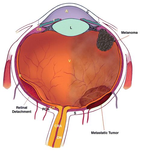 diagnosticare ecografie oftalmologie