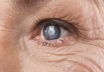 miopie cataractă glaucom