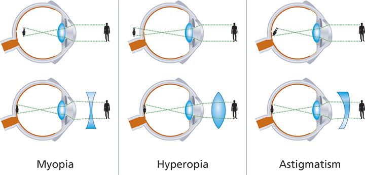 vedere slabă unde se aplică diagrama cu ochii în față