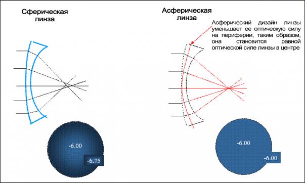 cum să înțelegeți hipermetropia sau miopia