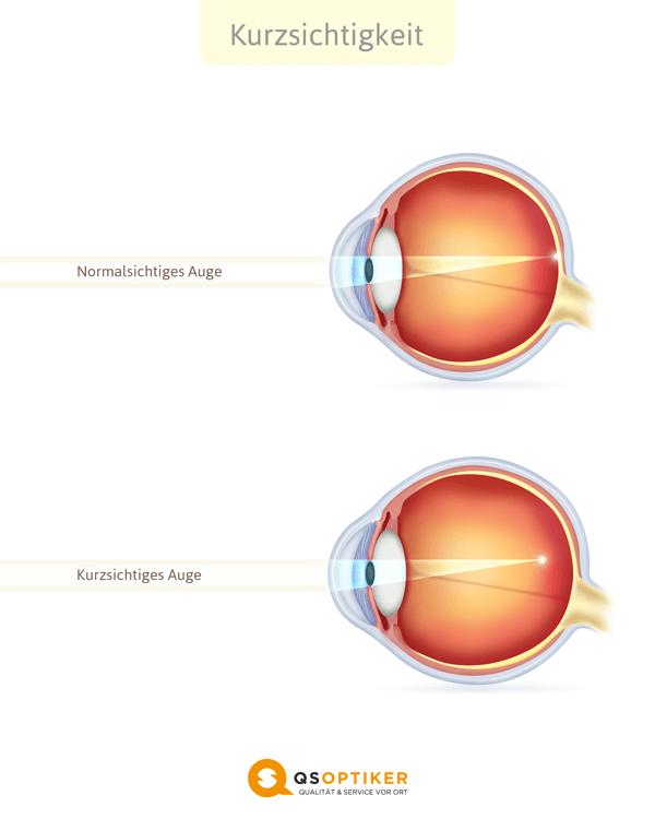minus 10 miopie boli frecvente care afectează vederea