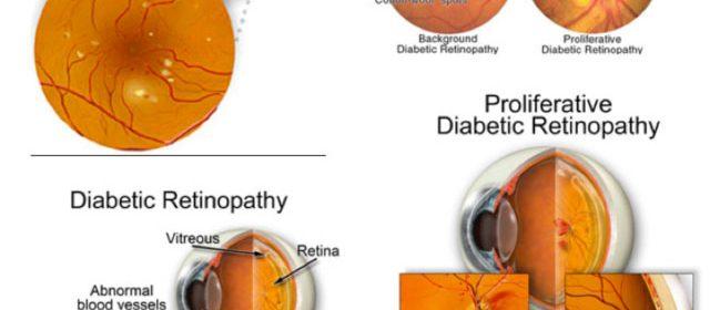 Retinopatia diabetica | Clinica Novaoptic