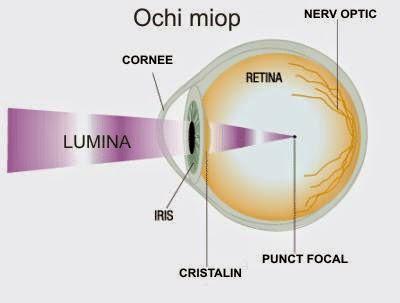 rezultatele antrenamentului ochiului miopiei hipermetropie viziune 4