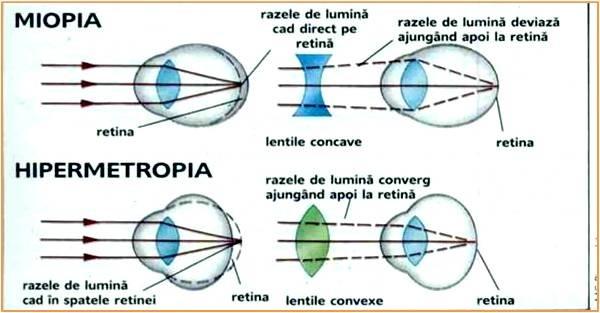 Despre strabism - Tratament congenital de hipermetropie