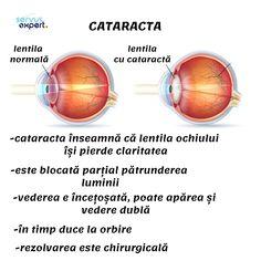 Recomandări esențiale pentru ochi sănătoși