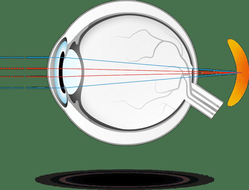 cum să îmbunătățim dacă hipermetropie al treilea ochi și vedere