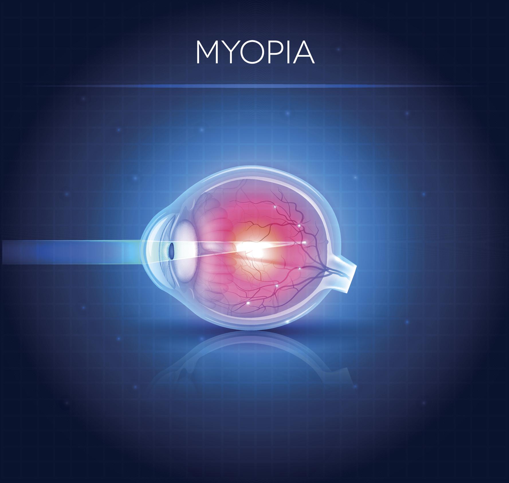 verificați miopia online