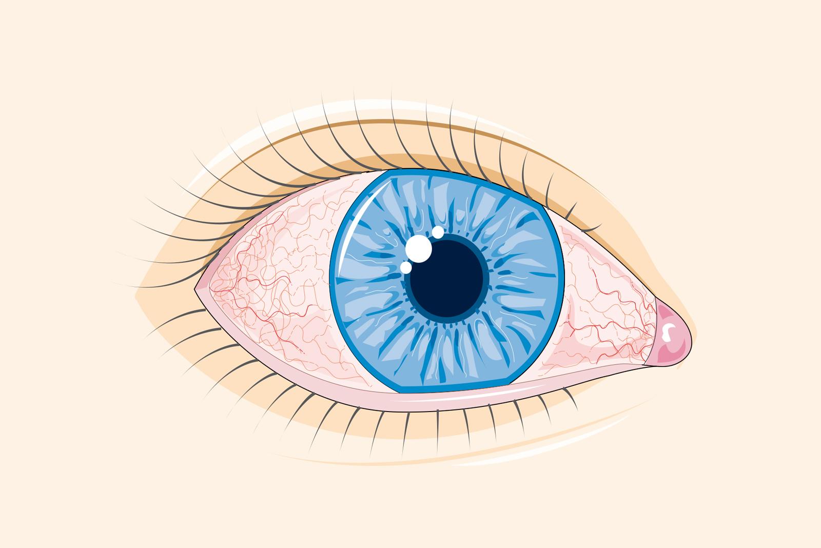 vedere la afectarea ochiului drept