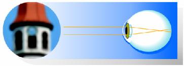 miopia așa cum apare viziune plus minus 1