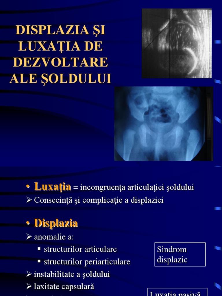 Rezultatele oftalmologice și moleculare în displazia de carte | ochi - Ochi -