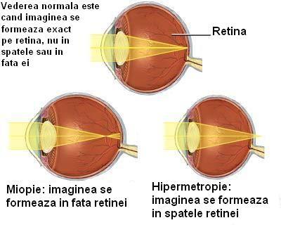 miopie și hipermetropie a ochiului
