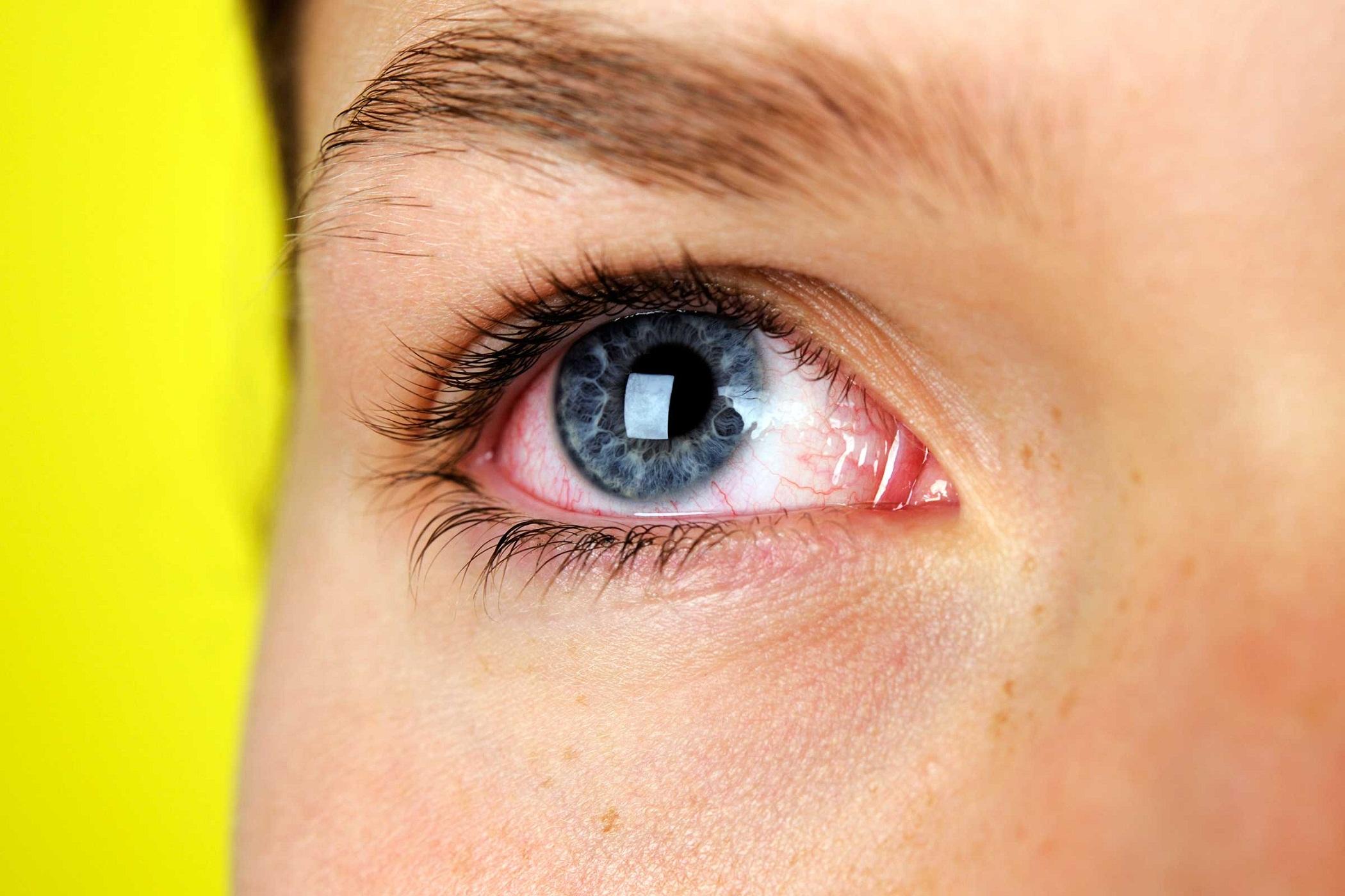 la ce vârstă miopia încetează să progreseze viziunea 3 cum s-a întâmplat
