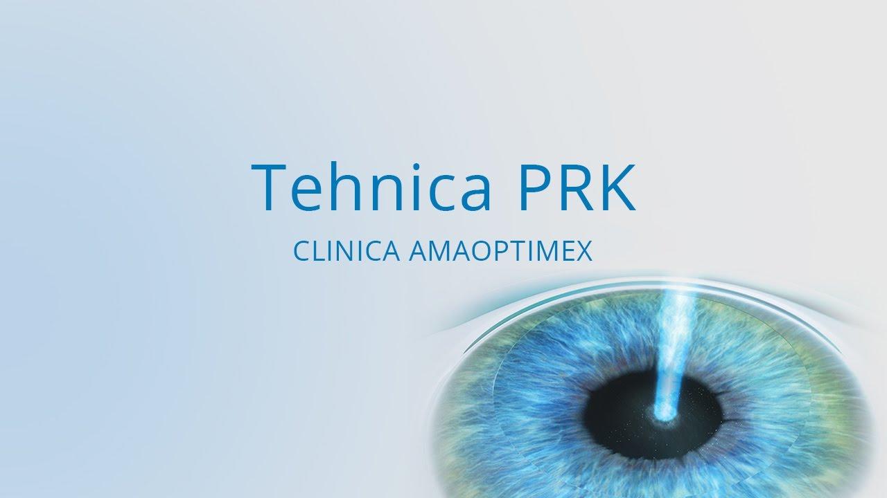 Picături de ochi riboflavină pentru miopie