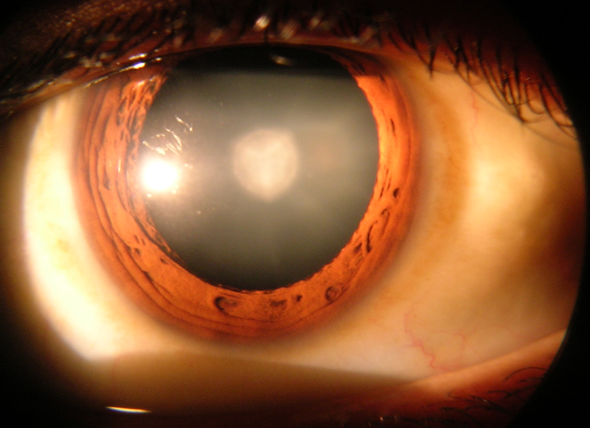 test de vedere a cataractei
