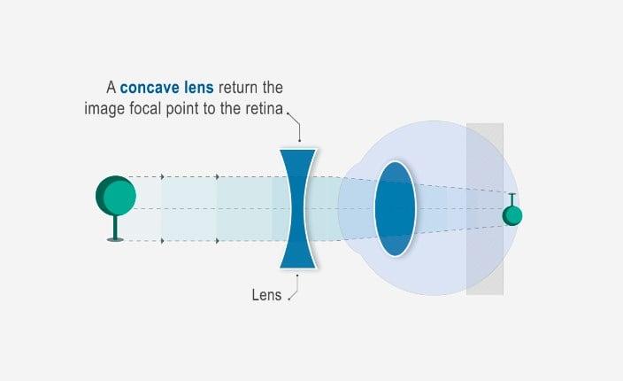 cum se poate măsura miopia