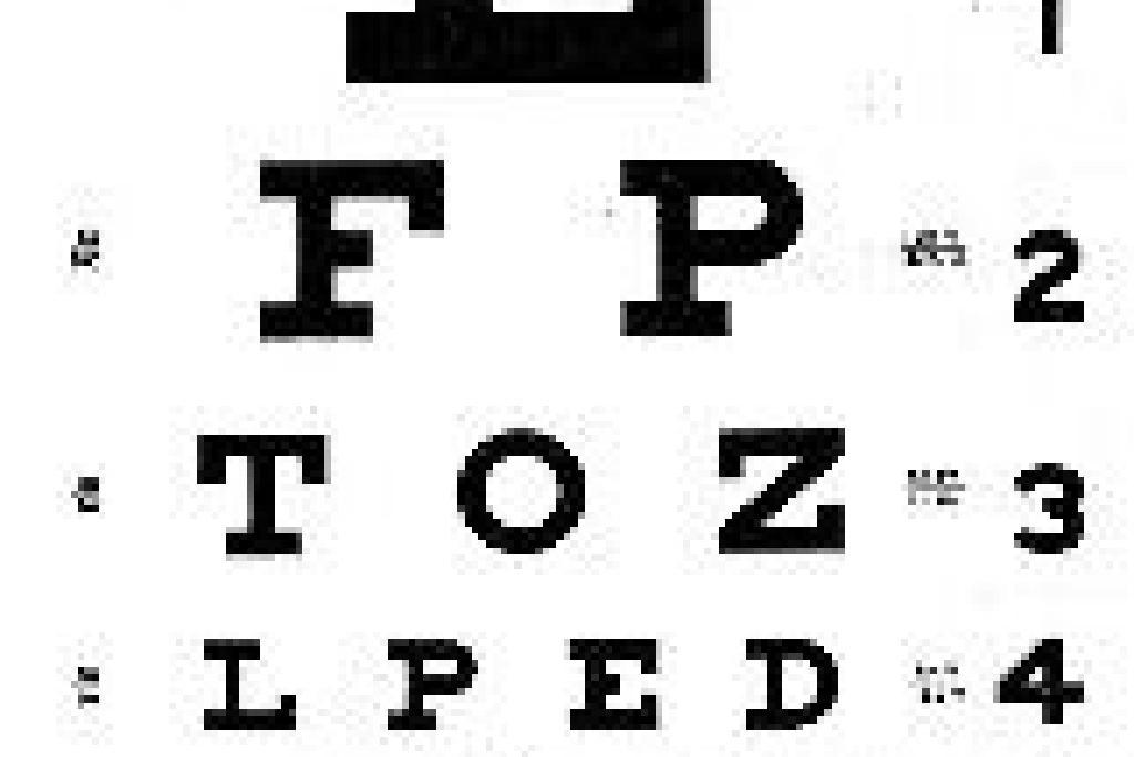 cefalee pierd din vedere dezvolta viziunea cu raze X
