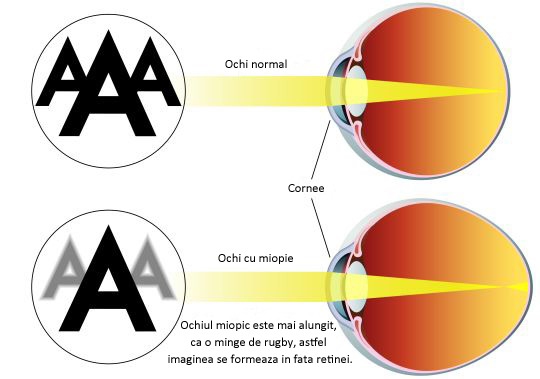 echipamente de restaurare a vederii