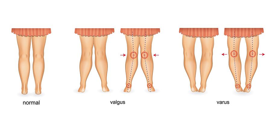 picioarele plate și miopia