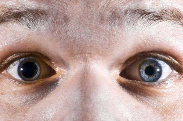 vederea dilatată a pupilei sa deteriorat carte restaurarea viziunii în 30 de zile