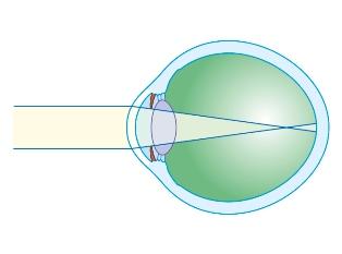 factori de vedere oleg viziune nouă