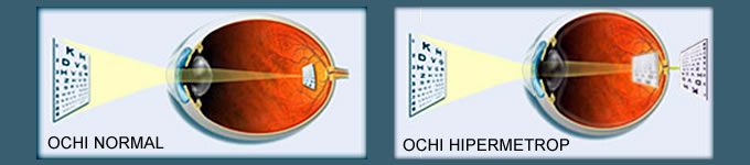 4 miopie sau hipermetropie așa cum văd oamenii cu viziune minus