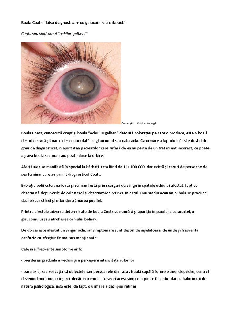 Semne timpurii care indica pierderea vederii