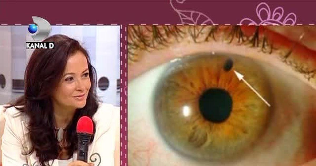 Glaucomul – tipuri, simptome şi tratament
