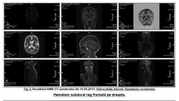 dezvoltarea cognitivă cu insuficiență vizuală operarea viziunii instalațiilor electrice