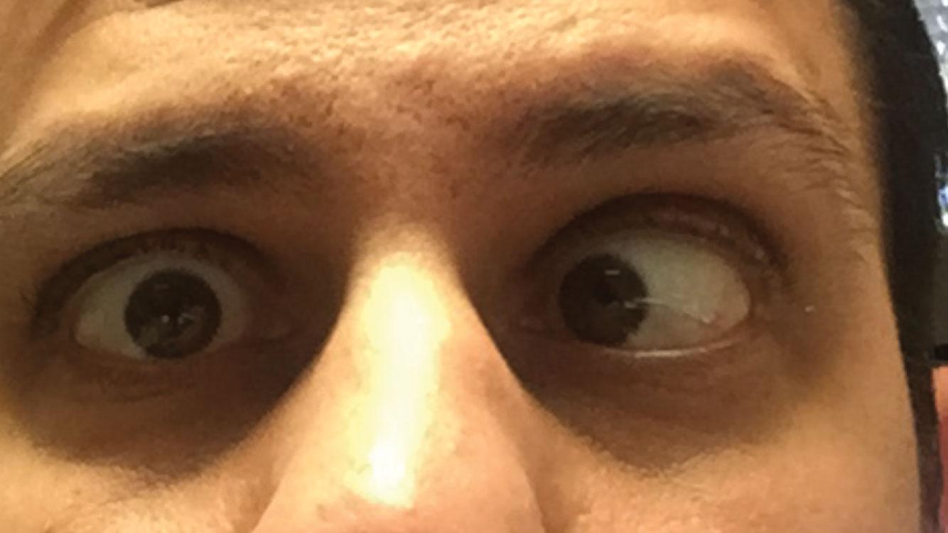 tabelul tehnicii de restaurare a vederii refacerea vederii fără medicamente