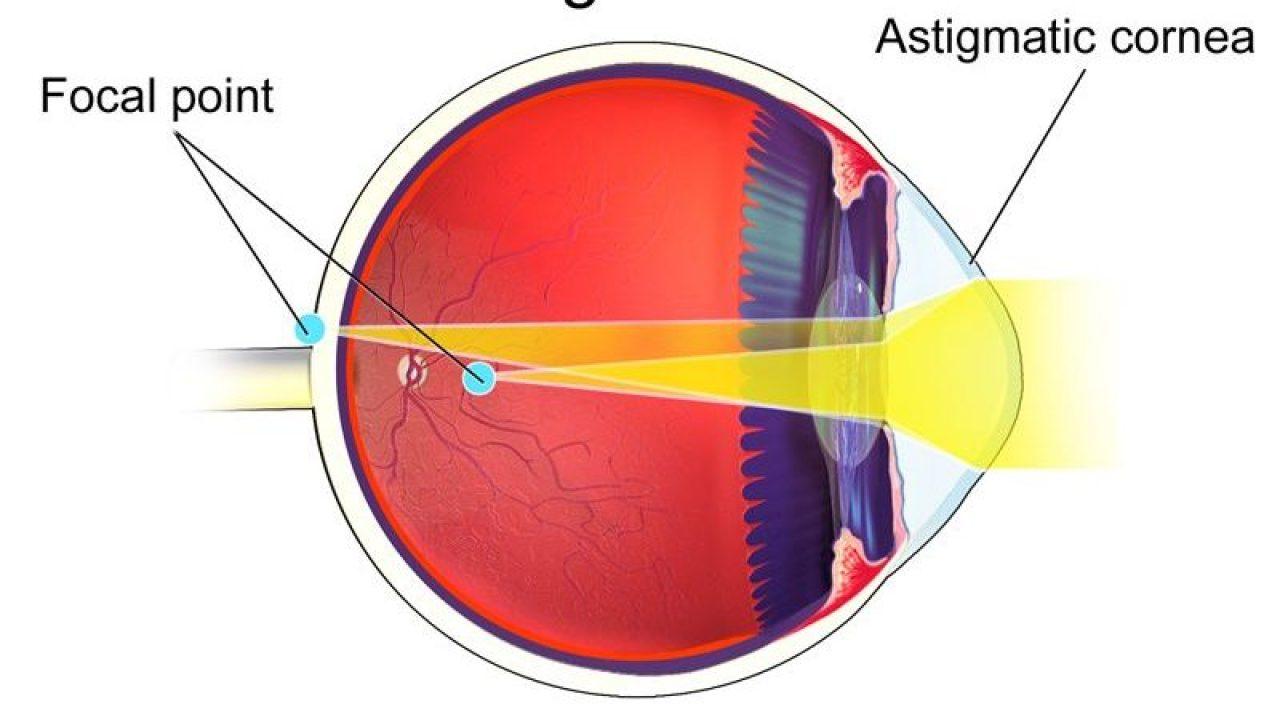 menținerea vederii cu astigmatism
