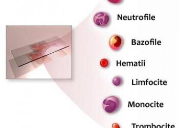 cum afectează hemoglobina scăzută vederea