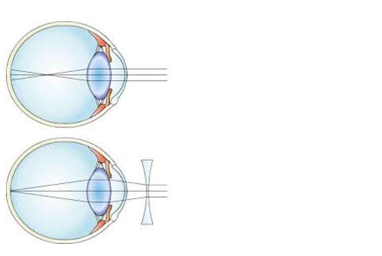 care și-a recăpătat vederea verificarea calității vederii