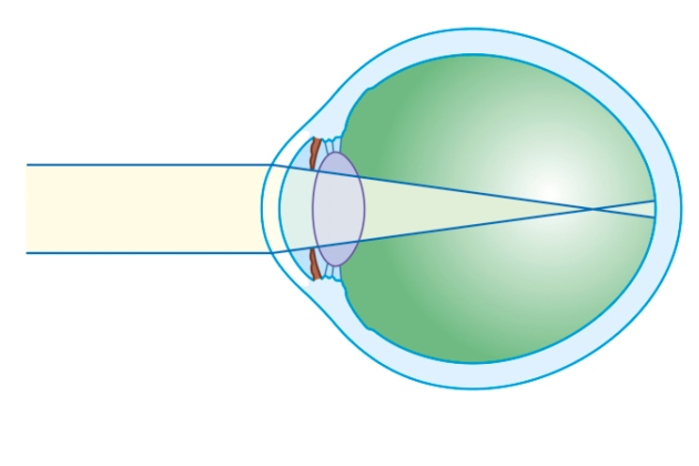 cum am vindecat astigmatismul și miopia