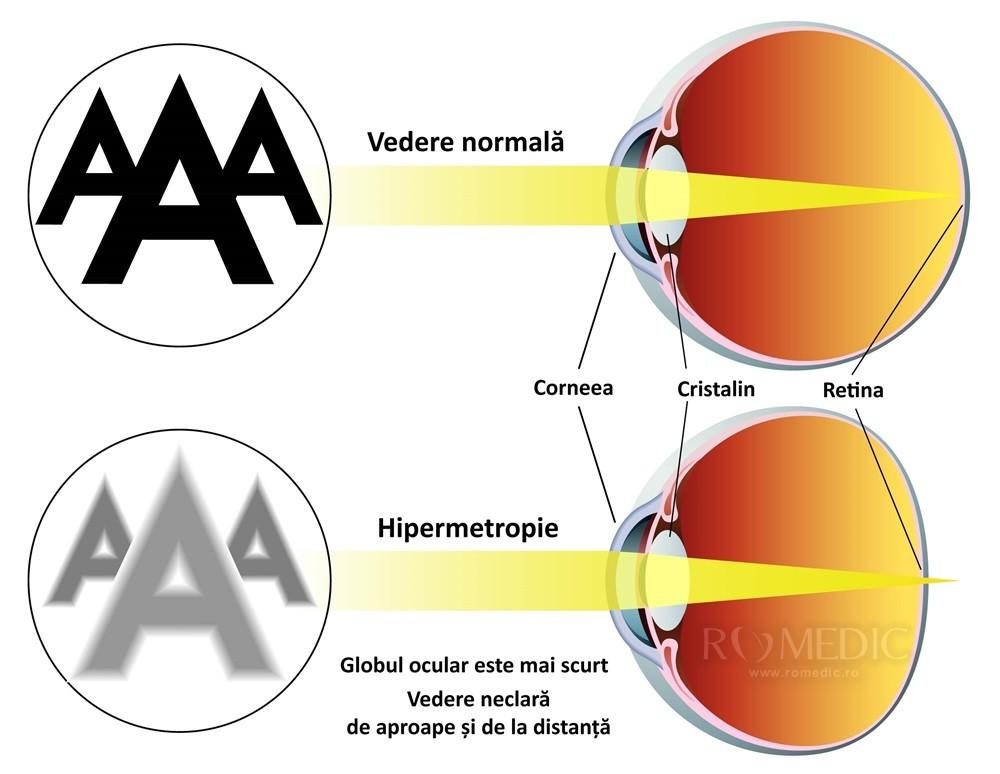 hipermetropie cât tratament vizual fără medicamente