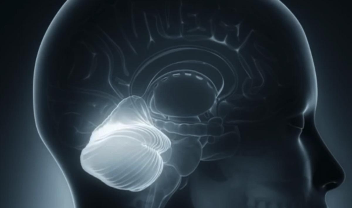 Trunchi cerebral
