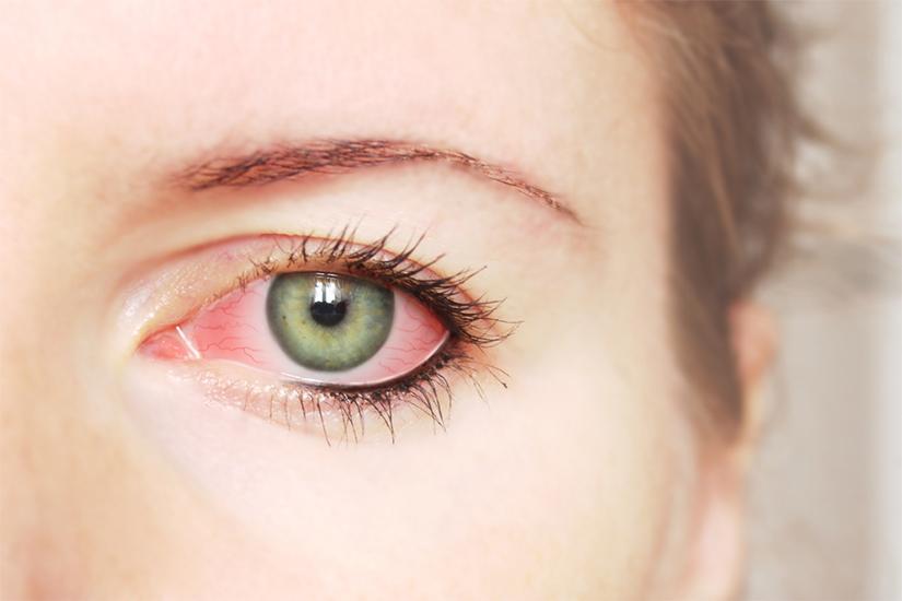 conjunctivita alergica degree of myopia