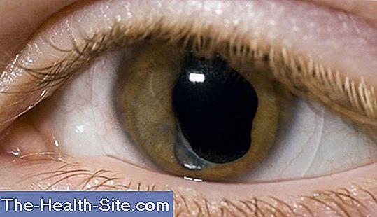 se poate restabili viziunea cu cataracta