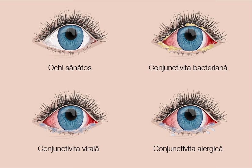 scăderea acuității vizuale cu conjunctivită
