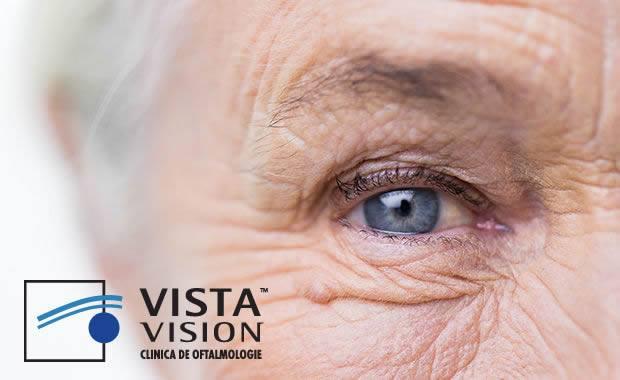chirurgia miopiei pentru cataractă