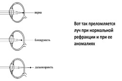 gimnastica de remediere hipermetropie medicamente pentru vedere și creier